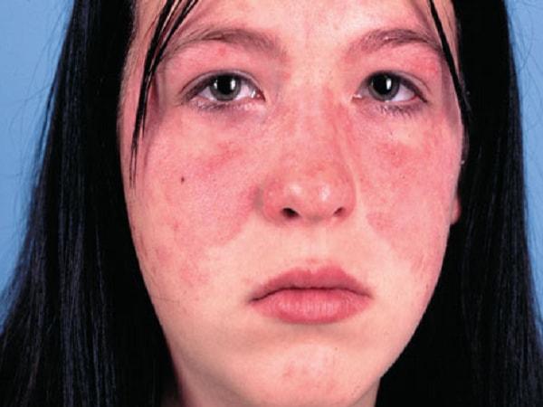 lupus ban đỏ có di truyền không
