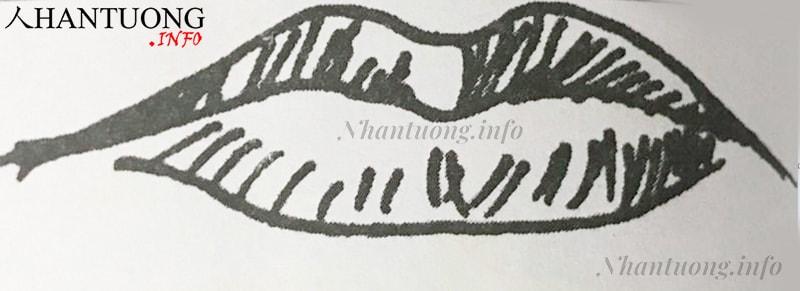 Hình dáng tướng miệng cá chép